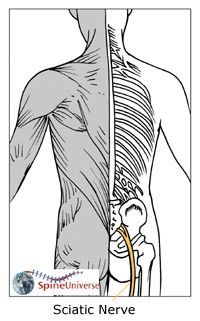 sciatica exercises blogger found a sciatica cure that doesn't involve exercises, stretches, pills or surgery      #sciatica #exercises