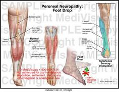 Medivisuals Peroneal Neuropathy: Foot Drop Medical Illustration