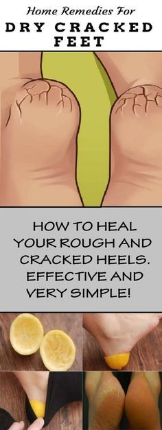#health #beauty #skincare #dry #cracked #rough #heels #naturalremedies