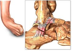 After sprained ankle bad ankle sprain treatment,high ankle sprain rehab how do i know if i have a sprained ankle,medial ankle sprain sprain. Ankle Ligaments, Ankle Fracture, Ligament Tear, Torn Ligament In Ankle, Ankle Anatomy, High Ankle Sprain, Bad Breath Remedy, Ankle Joint, Physical Therapy