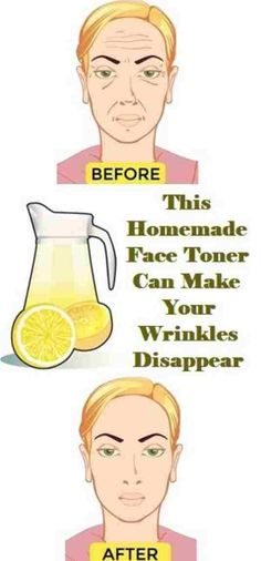THIS HOMEMADE FACE TONER CAN MAKE YOUR WRINKLES DISAPPEAR – 🅿🅻🅰🆃🅽🆄🅼