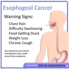 There is currently no routine or standard screening test to detect #EsophagealCancer. Knowing the signs is one important way to fight this deadly disease! Early detection improves the chances of survival by catching the #cancer in its earliest stages--before it spreads and becomes advanced. Speak to your doctor immediately if you experience any of these symptoms.  Help us raise #awareness by sharing this message!  #EsophagealCancerAwareness #EsophagealCancerResearch #AllPeriwinkleEverything™