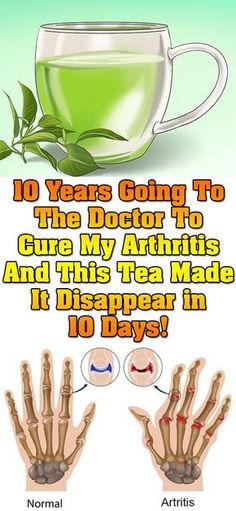 Watch This Video Proven Homemade Remedies for Arthritis and Joint Pain Ideas. Staggering Homemade Remedies for Arthritis and Joint Pain Ideas. Natural Cure For Arthritis, Arthritis Remedies, Health Remedies, Arthritis Hands, Arthritis Exercises, Arthritis Relief, Holistic Remedies, Rheumatoid Arthritis, Health Products