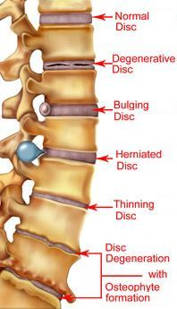 Remedies To Relief Pain herniated disk supplements to help speed recovery and repair-glucosamine with chondroiton, flax seed oil, calcium and phosphorus with vit. D, bee pollen Human Body Anatomy, Human Anatomy And Physiology, Muscle Anatomy, Leg Muscles Anatomy, Fitness Workouts, Degenerative Disc Disease, Spine Health, Medical Anatomy, Massage Therapy