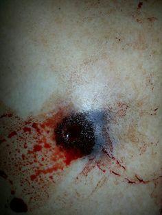 Close range gun shot wound - look at the tattooing.