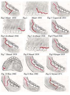 La cirugía de terceros molares impactados y/o parcialmente impactados es el procedimiento más común en la cirugía oral y maxilofacial. ...