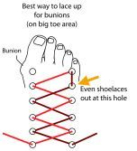 lacing shoes for bunions