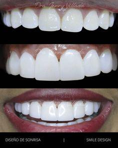 Antes y después. Caso diseño de sonrisa. Jennyvilladaodontología.com #smiledesing #smiledesigner #dentist #dentista #dentistry #odontology #teeth #tooth #dental #veneers #cosmetic #cosmeticdentistry #cosmeticdentist #futuredentist by drajennyvillada Our Cosmetic Dentistry Page: http://www.myimagedental.com/services/cosmetic-dentistry/ Google My Business: https://plus.google.com/ImageDentalStockton/about Our Yelp Page: http://www.yelp.com/biz/image-dental-stockton-3 Our Facebook Page…
