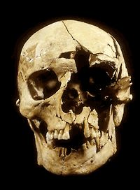 29 March 1461 during a snowstorm on a Palm Sunday in Yorkshire, the largest and bloodiest battle on English soil was fought at Towton during the Wars of the Roses. Depicted below is a skull found in a mass grave near the battlefield, smashed in with a pollaxe.