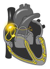Qué es el marcapasos del corazón.