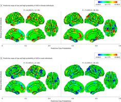Male Brain Phenotype Linked to Autism Risk, Even in Girls