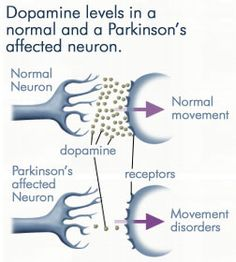Early Symptoms of Parkinson's Disease | Natural Holistic Health Blog