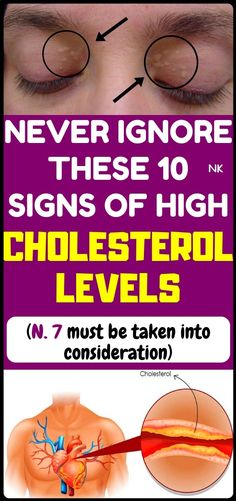 10 symptoms of high cholesterol, which you should not ignore - Skin care tips - Fat Burning Health Tips For Women, Health Advice, Health And Beauty, Health Care, Health Diet, Beauty Skin, Health Fitness, Kidney Health, Women Health
