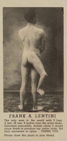 """Francesco Lentini nasceu em 1889 . Seu irmão gêmeo, que consistia em uma perna e um conjunto de órgãos genitais, nasceu ligado à espinha de Francesco. Enquanto ele foi anunciado como """"o homem com três pernas"""", Lentini, na verdade, tinha quatro pés, como um pequeno pé secundário malformado saía de sua terceira perna. Assim, no total, ele tinha três pernas, quatro pés, dezesseis dedos dos pés e dois conjuntos de órgãos genitais masculinos funcionando"""