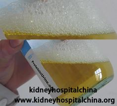 Massive protein leakage is a typical symptom of Nephrotic Syndrome. How to solve the kidney protein discharge for Nephrotic Syndrome patients? Kidney Failure Symptoms, Kidney Disease Stages, Chronic Kidney Disease, Kidney Cancer, Prostate Cancer, Nephrotic Syndrome, Kidney Infection, The Cure, Health