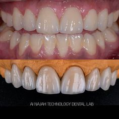 8 veneers GC LiSi ceram (A2 shade).#smiledesign #dentisterymyworld #dentalphotography #dentistery #aesthetic #cosmetics #aesthetcdentistry #cosmeticdentistry #makeover #retuch #veneers #luminate #lumineers #feldespatic #aboudhabi #dubai #alldental #saudiarabia #quwait #qatar #bahrain #armenia #lebanon #فنييرز #لومنييرز by kevork_ka Our Cosmetic Dentistry Page: http://www.lagunavistadental.com/services/cosmetic-dentistry/ Google My Business…