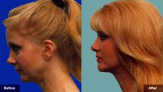 Facelift & Necklift Surgery Hinsdale - Chicago http://www.hannamd.com/facial-cosmetic-procedures/hinsdale-rhytidectomy-face-and-neck-lift.html