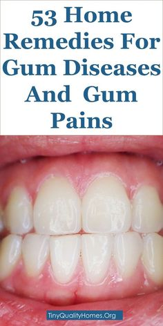 53 Home Remedies For Gum Diseases, Gum Pains And Gum Aches: This Guide Shares In… - naturel pain Sore Gums Remedy, Remedies For Tooth Ache, Gum Disease Treatment, Sores On Gums, Mouth Sores, Gum Inflammation, Foot Remedies, Home Remedies