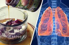 Οι Γιαγιάδες μας Γνώριζαν Καλύτερα : Παραδοσιακή Θεραπεία για το Άσθμα, τη Βρογχίτιδα και άλλες Πνευμονικές Παθήσεις. Herbal Medicine, Health Tips, Wine Glass, Herbalism, Remedies, Tableware, Dinnerware, Home Remedies, Tablewares