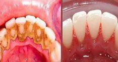 Tämän yksinkertaisen kotikonstin avulla voit välttää hammaslääkärin tuolin. Newsner tarjoaa uutisia, joilla todella on merkitystä!