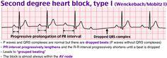 second degree heart block