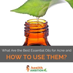 What Are the Best Essential Oils for Acne and How to Use Them?