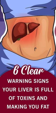 6 Clear Warning Signs Your Liver Is Full of Toxins and Making You Fat (How to St. 6 Clear Warning Signs Your Liver Is Full of Toxins and Making You Fat (How to Stop it) Medicine Book, Herbal Medicine, Natural Medicine, Natural Detox, Natural Healing, Natural Skin, Natural Life, Natural Beauty, Paar Workout