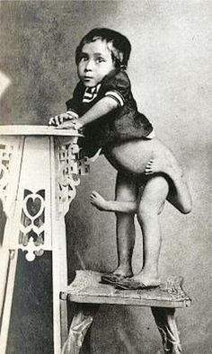 Worked as a sideshow performer....  Parasitic twin. If anyone can add a name to this post please do.