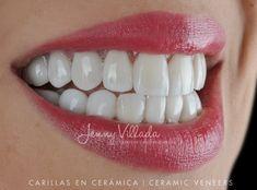 Diseño de sonrisa en cerámica Dental, Teeth, Dentist Clinic, Tooth, Dental Health