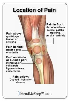 Knee pain can occur at several places in the joint depending on the injury or condition.