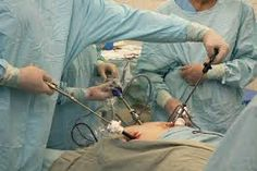 Laparoscopic Weight Loss Surgery and Its Benefits