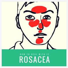 Best treatment for rosacea pustules national rosacea society uk,anti aging night cream body acne treatment,skincare and cosmetics natural remedies for aging skin. What Causes Rosacea, Ocular Rosacea, Acne Rosacea, Reduce Face Redness, How To Treat Rosacea, Nashville, Hair And Beauty, Tips, Health