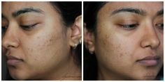 REVIEW: Mary Kay Clear Proof Acne System*