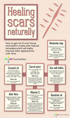 Healing Scars Naturally, good info! I've tried the Vitamin E Oil and it does help. (though it takes patience)