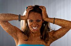 Vitiligo: un million de Français touchés