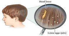 Tous les parents ont peur des poux de tête et la plupart d'entre eux craignent que leur enfant viendra se plaindre que leur cuir chevelu qui démange. La raison en est parce que les poux