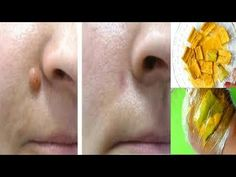 Just 1 Single Night Remove Skin Tag Mole and Wart Fast With Skin Tag Treatment Skin Tag Treatment, Wart Treatment, Skin Tag On Eyelid, Skin Tags On Face, Face Skin, Skin Tags What Causes, Remove Skin Tags Naturally, Skin Tags Home Remedies, Skin Tag Removal