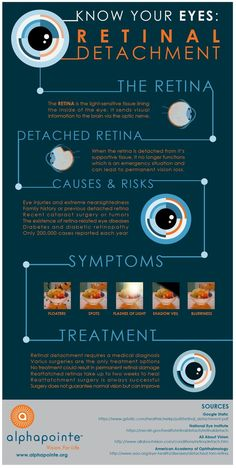 Know your eyes infographic: retinal detachment provided by Alphapointe www. Opthalmic Technician, Posterior Vitreous Detachment, Eye Floaters Cure, Diseases Of The Eye, Eye Anatomy, Human Anatomy, Eye Facts, The Retina, Healthy Eyes