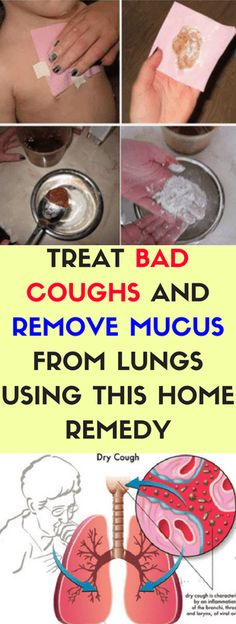 Treat Bad Coughs & Remove Mucus From Lungs Using This Home Remedy, This Works Great For Kids!!!!! - All What You Need Is Here
