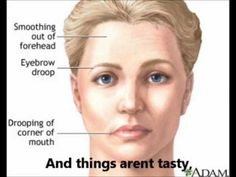 Utilize facial yoga exercises to smooth out face wrinkles and haul up saggy face skin. Facial toning workouts for restoring a wrinkle-free and younger looking skin Yoga Facial, Facial Muscles, Speech Pathology, Speech Therapy, Face Yoga Exercises, Toning Exercises, Natural Face Lift, Natural Skin, Facial Nerve