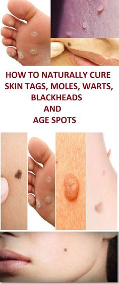 Here are some of the most common skin conditions and the most effective homemade remedies for treating… http://ibeebz.com
