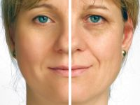 The #RevitolAntiAging Solution is the miraculous formulation of Revitol Skin Care, which helps remove wrinkles as well as age spots from the facial skin and makes women look younger