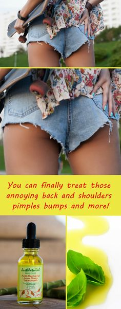 You can finally treat those  annoying back and shoulders  pimples bumps and more!
