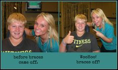 Zach's braces are off!
