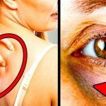 How to Get Rid of Dark Underarms Overnight Permanently: Dark underarms can be an embarrassing situation sometimes if you love to wear sleeveless. Dark underarms are known as common beauty issu… Reduce Double Chin, Circulation Sanguine, Vicks Vaporub, Cry For Help, High Blood Pressure, Blood Sugar, How To Get Rid, Cellulite, Health Tips