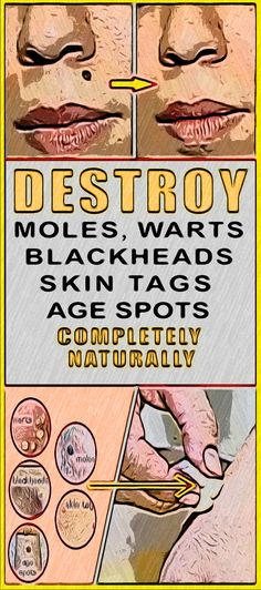 Fortunately this article contains completely natural remedies to cure your warts moles blackheads skin tags and age spots! Health And Fitness Expo, Health And Fitness Articles, Nutrition Articles, Natural Cold Remedies, Cold Home Remedies, Herbal Remedies, Natural Health Tips, Natural Healing, Natural Foods