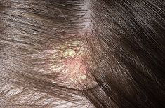 Scalp psoriasis is a common form of psoriasis affecting millions worldwide. The Psoriasis Program can show you different natural solutions to help cure it. Itchy Flaky Scalp, Dry Scalp, Hair Dandruff, Severe Psoriasis, Seborrhoische Dermatitis, Nail Psoriasis Treatment, Psoriasis Remedies, Hair Treatments, Long Curly Hair