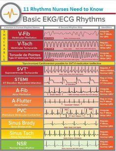 heart rhythms for nclex Rn School, Medical School, Pharmacy School, Nursing School Notes, Nursing Schools, Critical Care Nursing, Cardiac Nursing, Nursing Tips, Nursing Cheat Sheet