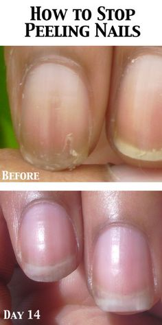 NEW ARTICLE: www.NailCareHQ.com Peeling nails - Marie Claire's Pure Nail Oil Challenge Results