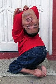 Welcome to Ayoade Enoch's Blog: Bizarre: Meet the Brazilian man born with his head...